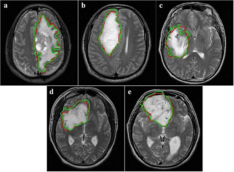 CT-scan tumor