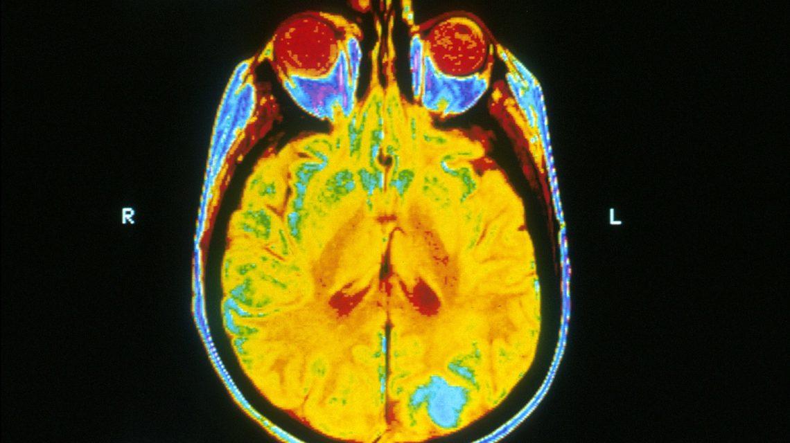 MRI-scan van het brein